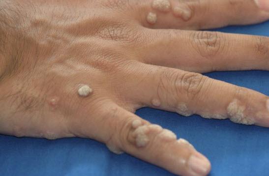 Крем против вируса папилломы человека