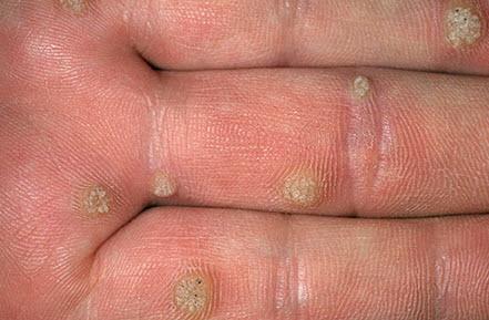 Удаление бородавок азотом за сколько раз