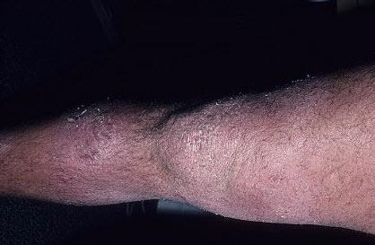 Дерматит на ступне сверху фото и симптомы