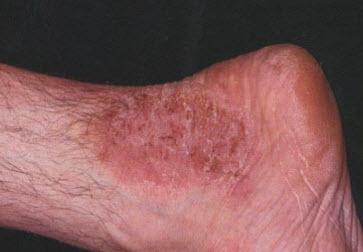 дерматит фото симптомы и лечение у взрослых на ногах