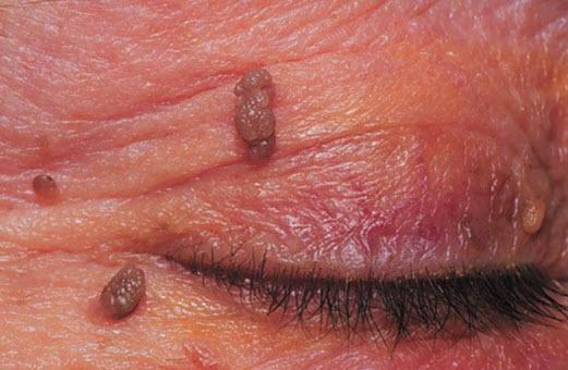 симптомы заражения паразитами у человека