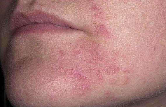 Лечение носа у ребенка 2 года