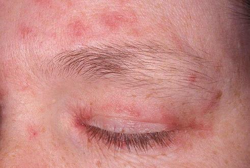 Периоральный дерматит на лице (пероральный): причины ...