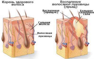 народный метод вывести паразитов из организма