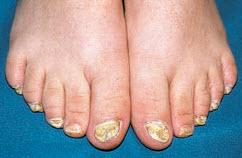 Фото ногти на ногах при псориазе