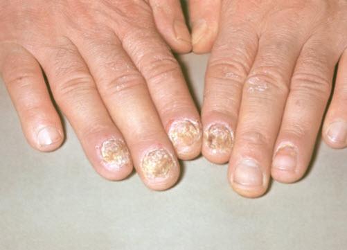Симптомы и лечение псориаза пальцев рук