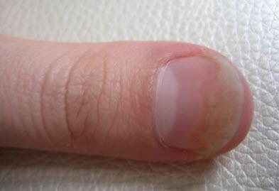 Псориаз ногтей лечение народные средства