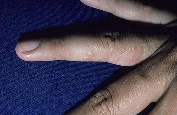 Как лечить ногтевой грибок на руках лечение
