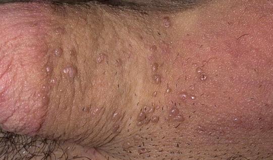 Папилломавирус у мужчин
