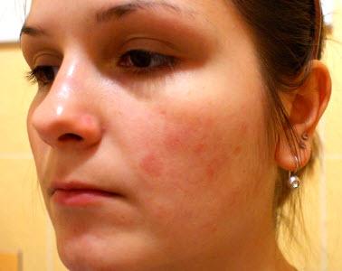 аллергия прыщи на лице чем лечить