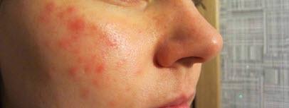 Лечение красных пятен на лице