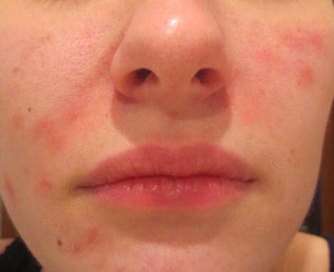 Сыпь на лице при беременности